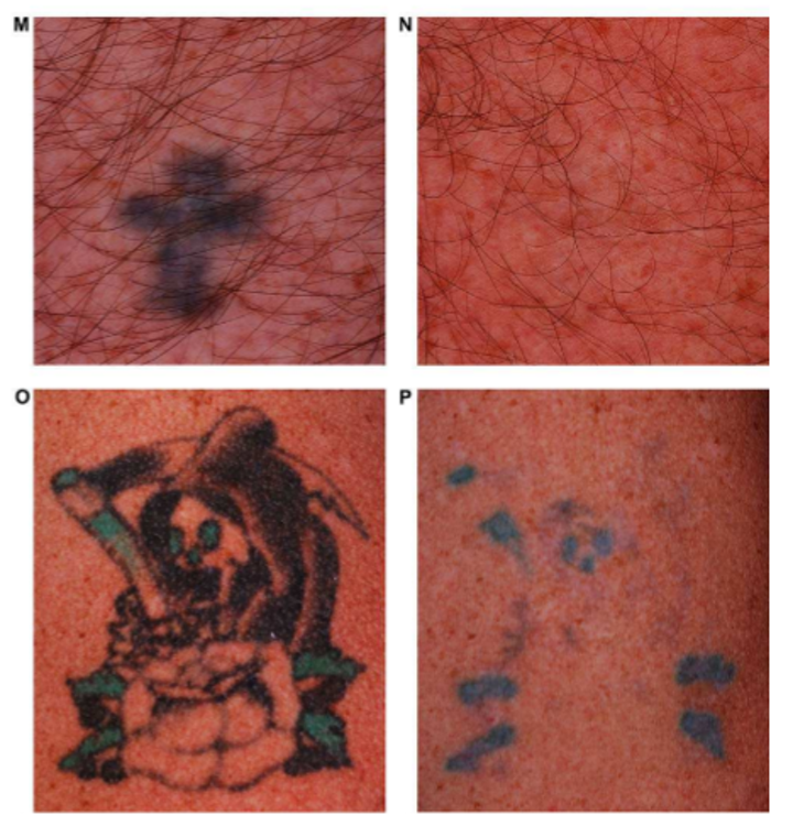 Multicolor tattoos are shown before (M, O) and after (N, P) treatment with a dual-wavelength Nd:YAG laser. Black inks are removed extremely well, but some blue and green inks remain. (Image credit: Syneron-Candela)