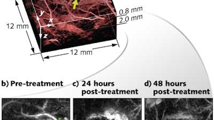 Photoacoustic imaging clearly identifies changes in blood vessels that feed a cancer tumor after administration of a therapeutic vascular disruption agent