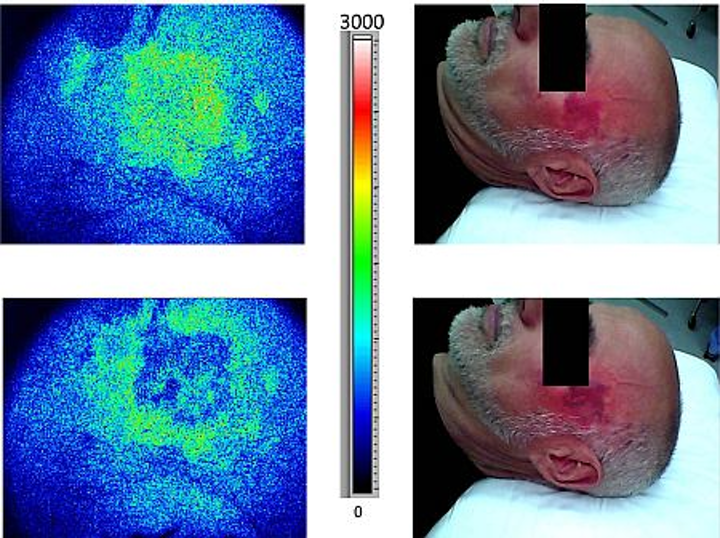 Real-time LSI improves port wine stain treatment