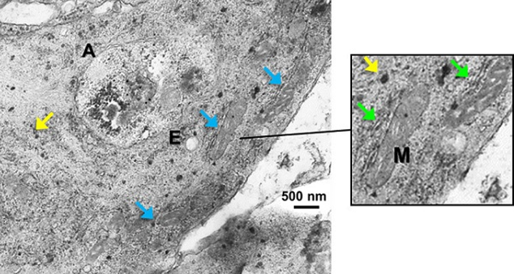 A transmission-electron-microscope image shows A549 cells incubated with AuNPs and single-walled carbon nanotubes at a concentration of 0.25mg/ml; yellow arrows point to AuNPs, blue arrows to mitochondria (M), and green arrows to endoplasmic reticulum. (Image credit: SPIE)