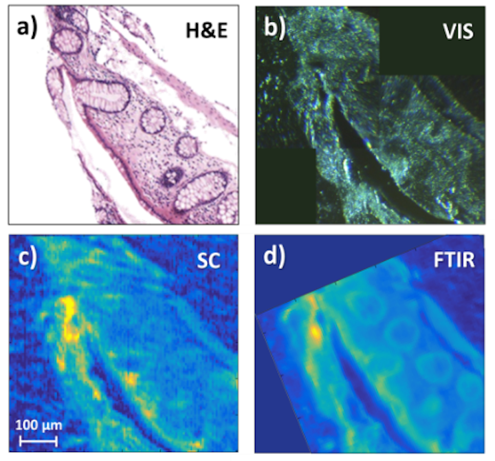 First demonstration of long-wavelength supercontinuum spectral imaging of tissue. Shown are (a) a gold-standard H&E stained microscope image, a (b) visible-light transmission image of the sample, a (c) supercontinuum image obtained by point scanning, and a (d) standard FTIR image obtained with a 128 x 128 focal plane array. (Image credit: Gooch & Housego)