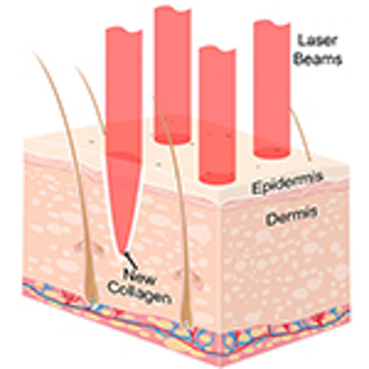 Diode Lasers Enable Diverse Therapeutic Applications | Laser Focus World