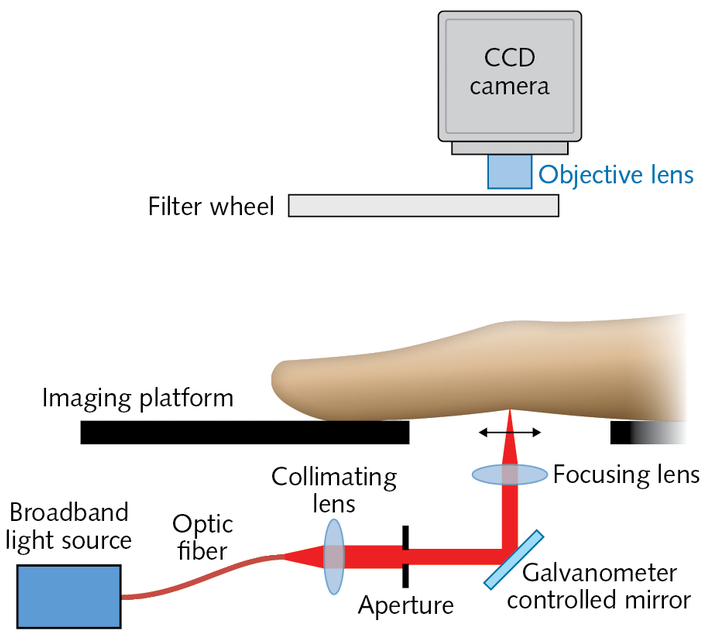 A fast, low-cost, highly sensitive diffuse optical imaging system acquires optical transmission images dorsally to provide objective, quantitative analysis for rheumatoid arthritis (RA) diagnosis and monitoring.
